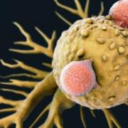 محققان دانشگاه Cardiff انگلستان نوع جدیدی از سلول های کشنده T را کشف کرده اند که امید های جدیدی برای درمان سرطان ایجاد کرده است. این نوع سلول T مجهز به نوع گیرنده جدیدی است که بیشتر انواع سلول های سرطان انسان را شناسایی میکند و سایر سلول ها را سالم نگه میدارد. این نوع گیرنده، یک نوع مولکول موجود بر سطح طیف وسیعی از سلول های سرطانی را شناسایی میکند. این مولکول که پروتئین MR1 نام دارد بر روی سلول های طبیعی بدن نیز وجود دارد اما این سلول T توانایی تشخیص بین سلول سالم و سرطانی را دارد. برای ارزیابی توانایی درمانی این سلول، دو بیمار دارای سرطان ملانوما با درجه چهارم متاستاز تحت درمان قرار گرفتند. محققان نشان دادند نه تنها سلول های سرطانی خود بیماران از بین رفت، بلکه سلول های سرطانی دیگر بیماران در آزمایشگاه بدون توجه به HLA بیمار، تخریب شد.