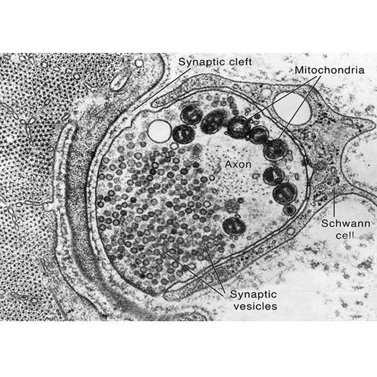 تماس عصبی و ماهیچهای میکروگراف الکترونی (TEM) یک سیناپس عصبی عضلانی ، اتصال بین آکسون نورون حرکتی (فیبر عصبی) و فیبر عضلانی. در مرکز (زرد) انتهای عصب است که با فیبر عضلانی (آبی ، در سمت چپ) در ارتباط است. وزیکول های کوچک داخل عصب حاوی مواد شیمیایی انتقال دهنده عصبی هستند که در نزدیکی عضله جمع شده اند. پیام عصبی که به طرف اعصاب حرکت می کند باعث می شود مواد شیمیایی انتقال دهنده عصبی از فاصله (شکاف سیناپسی) بین عصب تا ماهیچه را عبور کند؛ مواد شیمیایی باعث تحریک یا مهار گیرنده های عضلانی می شوند. سلول شووان (خاکستری تیره) عصب را از لحاظ ساختاری و متابولیکی حمایت می کند. بزرگنمایی = تقریباً 35000 ⠀ تصویر 1: TEM رنگی تصویر 2: تصویر سیاه و سفید اصلی همراه با لیبل 