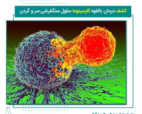 کشف درمان بالقوه کارسینوما سلول سنگفرشی سر و گردن سرطان سلول سنگفرشی سر و گردن (HNSCC) در غشاهای مخاطی دهان ، بینی و گلو ایجاد می شود. این یک بیماری تهاجمی است که با مرگ و میر بالا همراه است و بیش از 90٪ سرطان های سر و گردن را شامل می شود. اکنون دانشمندان برای درمان سرطان پیشرفته سلول سنگفرشی سر و گردن یک روش جدید کشف کرده اند. محققان با استفاده از یک مدل موش ، دریافتند که استفاده از داروی ایمونوتراپی ضد PD1 در ترکیب با PTC209 ، یک مهارکننده که پروتئین BMI1 را هدف قرار می دهد، با موفقیت رشد و گسترش سرطان را متوقف می کند، از بروز مجدد جلوگیری کرده و سلولهای بنیادی سرطانی را از بین می برد.